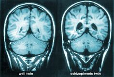 Brain scans compare well twin and twin with schizophrenia http://img.webmd.com/dtmcms/live/webmd/consumer_assets/site_images/articles/health_tools/schizophrenia_overview_slideshow/webmd_rf_photo_of_mri_brain_scans.jpg