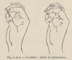 1898, découverte des vertus collantes de la crotte de nez.