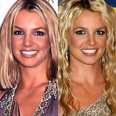Has Britney Spears had plastic surgery? These several before and after photos show that she definitely had a nose job and breast implants (she may have had Botox). Britney Spears Nose Job, Plastic Surgery Photos, Celebrity Plastic Surgery, Celebrities Before And After, Before And After Weightloss, Botox Injections, Operation, Health Pictures, After Surgery