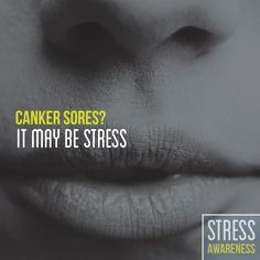 April is Stress Awareness Month!  Learning to manage stress will help keep your mouth healthy for a lifetime!!!   We hope everyone takes a little time to de-stress everyday!!!  As for us...we laugh A LOT, Dr. Maddox might say maybe TOO MUCH sometimes. Never... We try our best to make our office as enjoyable and fun as we do efficient and that means talking and laughing with out patients and each other!!!!  What are some of your favorite stress management techniques that work well for you???