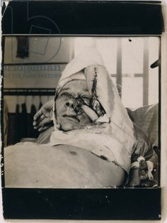English soldier with facial wounds sustained during WWI, 1914-18 (b/w photo)