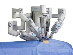 Da Vinci Surgical Robot Has Serious Risks for Hysterectomy - Public Health Watchdog Surgical Robots, Medical Robots, Surgical Tech, Medical Technology, Prostate Cancer Surgery, Prostate Cancer Treatment, Da Vinci Surgical System, Intuitive Surgical, Robotic Surgery