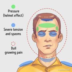 ΠΟΝΟΚΕΦΑΛΟΣ: Τα πέντε είδη - Τι τους προκαλεί και πώς να τους αντιμετω Anti Migraine, Migraine Attack, Migraine Pain, What Causes Migraines, Getting Rid Of Migraines, Headache Diary, Headache Location, Chronic Pain, Health