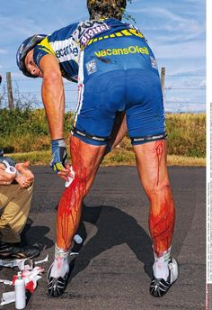 Johnny Hoogerland is seen to after his crash in the 2011 Tour de France