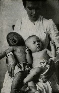 Two children in the Municipal Hospital, one unvaccinated and the other vaccinated on the day of admission - the crust is still seen on the leg. This child remained in the hospital with its mother(who was suffering from smallpox) for three weeks, and was discharged perfectly well. The unvaccinated child admitted with smallpox died.(Welch and Schamber [Schamberg?].) Copyright E.J.S>