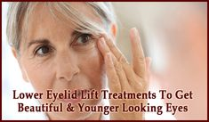 Lower Eyelid Lift Treatments To Get Beautiful & Younger Looking Eyes - liposuction plastic surgery Swollen Eyelid, Drooping Eyelids, How To Read More, How To Get, Castor Oil For Eyes, Basic Eye Makeup, Eyelid Lift, Neck Lift