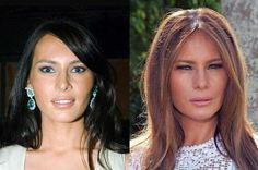 Celebs Discover Finally The Reason Melania Trump Squints! Bad Celebrity Plastic Surgery, Celebrity Surgery, Bad Plastic Surgeries, Plastic Surgery Gone Wrong, Celebrities Before And After, Celebrities Then And Now, Beautiful Celebrities, Afro, Trump Hair