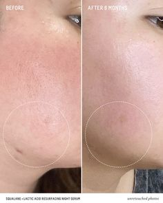 Biossance Squalane + Lactic Acid Resurfacing Night Serum works to deliver dramatically smoother, more luminous skin overnight. Alpha Hydroxy Acid, How To Exfoliate Skin, Eye Treatment, Cleansing Gel, Lactic Acid, Rose Oil, Eye Gel, Dull Skin, Serum