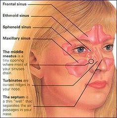 Nose Anatomy Model With Paranasal Sinuses | Pinterest | Paranasal ...