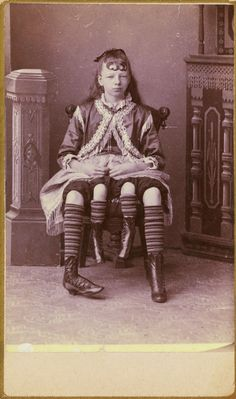 blackandwtf:1880s  Josephene Myrtle Corbin, the Four-Legged Woman, was born in Lincoln County, Tennessee in 1868. Rather than having a parasitic twin, Myrtle's extra legs resulted from an even rarer form of conjoined twinning known as dipygus, which...