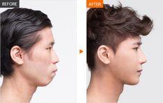 #men #menplasticsurgery #Banobagi #goodlooking #maleplasticsurgery #koreanman #koreanman #Plasticsurgery #Cosmeticsurgery #Beauty #Women #Gangnam #Seoul #Korean #Makeover #Life #Health #Faceshape #Faceline #Facecontour #Jaw #Jawline #fatgraft #skincare #nose #nosesurgery #rhinoplasty For More Information in English,http://m.engbanobagi.com Email: english@banobagi.com WhatsApp : +82-10-2216-6508