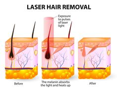 Interested in the Laser Hair Removal treatment? Here is a great illustration of how it works!