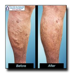 Laser vein removal technology is used to get rid of unsightly varicose veins on your legs. At The Vein & Vascular Institute of Riverview our vein specialists treat you on an outpatient basis and you can literally walk right out of the office and go on with your day. Vein Consultation...call (813) 999-3992 to schedule yours! Learn more at:  https://www.veinandvascularinstituteofriverview.com/riverview-varicose-vein-removal-pictures/