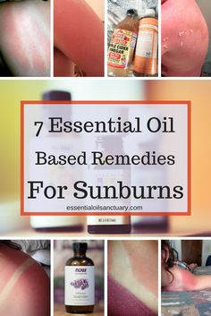Ouch - so you got burnt. Or maybe you're planning to get burnt? At any rate, here are 7 essential oil based remedies for sunburns to check out - plus a bunch of other tips, tricks and recommendations for keeping your skin healthy and nourished in the summer sun.