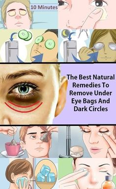 Are you among the people who have got dark circles and bags under their eyes? Do you feel tired and old...