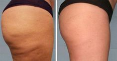 Cellulite, Lotion, Strong Hair, Beauty Recipe, Your Skin, Rid, Hair Beauty, Workout, How To Make