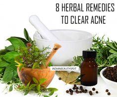 8 Los remedios herbarios para despejar el acné