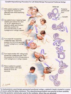 Vestibular exercises for BPPV ( type vertigo) Occupational Therapist, Physical Therapist, Physical Therapy Student, Epley Maneuver, K Tape, Vertigo Relief, Vertigo Causes, Vertigo Exercises, Alternative Health