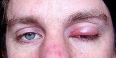 How to Get Rid Of a Stye. A stye is a painful swollen bump on the edge of your eyelid, sometimes caused by an infected eyelash follicle or oil gland. Eye Stye Remedies, Natural Remedies, Homemade Face Moisturizer, Overnight Acne Remedies, Prevent Wrinkles, Skin Problems, How To Get Rid, Good Skin