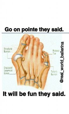 This is so true, many of my friends including myself have messed up feet from pointe