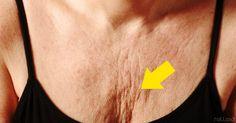 Quita las arrugas del pecho y el cuello con estos remedios y consejos para evitarlos