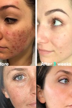 Brown Spots On Skin, Skin Spots, Dark Spots, Cystic Acne Treatment, Skin Treatments, Sunspots On Face, Spots On Forehead, Led Light Therapy Mask, Red Light Therapy