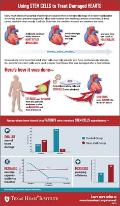 Using Stem Cells to Treat Damaged Hearts Infographic by Texas Heart Institute Sickle Cell Cure, American Heart Assoc, Marfan Syndrome, Heart Institute, Stem Cell Research, Heart Muscle, Stem Cell Therapy, Regenerative Medicine, Thyroid Health