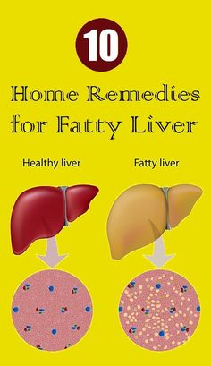 Top 10 Home Remedies for Fatty Liver - Health Remedies Fatty Liver Diet, Healthy Liver, Healthy Detox, Fatty Liver Symptoms, Fatty Liver Remedies, Natural Health Remedies, Natural Cures, Herbal Remedies, Natural Treatments