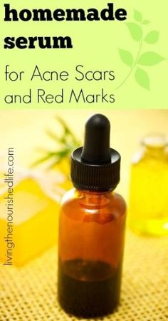 Homemade Serum for Acne Scars and Red Marks made with frankincense, lavender, and lemon essential oils. by kittie.peterson
