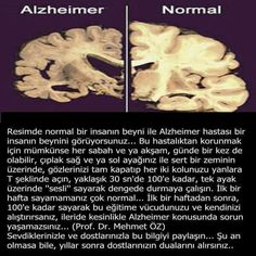 This Pin was discovered by Ayg Alternative Health, Alternative Medicine, Health Care Reform, Alzheimer's And Dementia, Interesting Information, Reflexology, Health Education, Massage Therapy, Good To Know