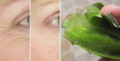 Come eliminare le rughe con l'aloe vera | Rimedio Naturale