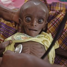 Mihag Gedi Farah, a seven-month-old child, is held by his mother in a field hospital of the International Rescue Committee in the town of Dadaab, Kenya. The baby has since made a full recovery.