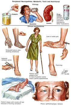 Peripheral Neuropathy. Causes, symptoms, treatment Peripheral ...