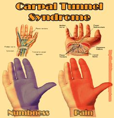 Carpal Tunnel Syndrome Check for learn