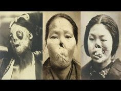 Warning!! Graphic Images: Fascinating Early Medical Oddities - YouTube