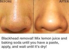 How To: Get Rid Of Blackheads!