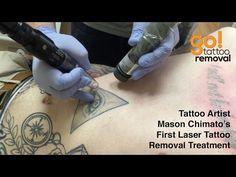 Laser Tattoo Removal On Tattoo Artist Mason Chimato Skin Color Tattoos, Green Tattoos, Red Ink Tattoos, Black Tattoos, Light Brown Tattoos, Brown Tattoo Ink, Deep Tattoo, Tattoo Removal Cost, Browning Tattoo