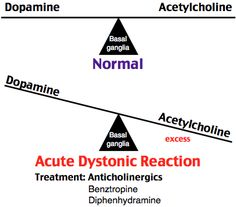 Acute dystonic reaction from metoclopramide Antipsychotics, antidopaminergic drugs Hours - days Muscle spasms (ie torticollis) Stiffness Rx: diphenhydramine, benztropine
