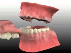 Information about denture care dos and donts of denture care how if you made the giant leap to take out one or all your remaining teeth you have a few options depending on your situation you can do a bridge an implant solutioingenieria Image collections