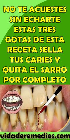 NO TE ACUESTES SIN ECHARTE ESTAS TRES GOTAS DE ESTA RECETA SELLA TUS CARIES Y QUITA EL SARRO POR COMPLETO – VIDA DE REMEDIOS Health And Beauty, Health And Wellness, Health Fitness, Natural Medicine, Health Coach, Skin Treatments, Teeth Whitening, Health Remedies, Healthy Tips