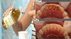 """Ájurvéda nabízí starodávnou zubní techniku, která se nazývá """"ganduša"""" či """"kavala"""" a která spočívá v proplachování úst olejem. Do úst nabereme polévkovou lžíci oleje a pak jím ústní dutinu 15 – 20 minut proplachujeme – velmi důležité je postup provádět na lačný žaludek. Tato technika pomáhá z těla odstraňovat toxiny a zlepšovat prostředí v ústech i celkový …"""