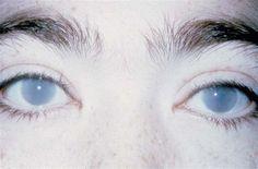 Pale eyes