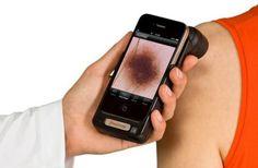 Skin Scan pour iPhone : Skin Vision est une application mobile médicale, compatible avec les terminaux iOS, qui permet de surveiller de près vos naevi. Pour ceci, il suffit de photographier vos grains de beauté et les sauvegarder et l'application se chargera de suivre les changements affectant la taille et la forme de votre grain via votre historique personnel.