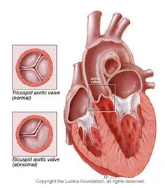 14 best Bicuspid aortic valve images on Pinterest | Bicuspid aortic ...