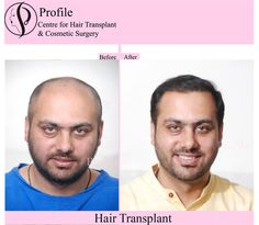 There are many FUT hair transplant centre in India but profile hair transplant centre is one of the top class centre that's provides you to better FUT treatment bas compared to other clinics. For more details visit our website.