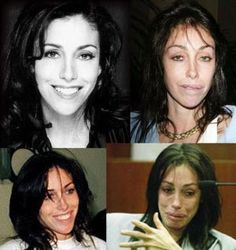 Heidi Fleiss Before During After Plastic Surgery OMG WTF Did You Do to Your Face?!: Celebrity Plastic Surgery Gone Wrong