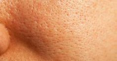Many of us experiences having large pores, but we shouldn't worry because there are some things that we can do about it.