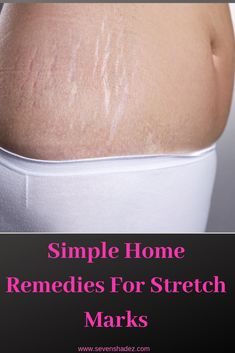 Some simple home remedies to remove your stretch marks.Strech marks are nothing but the skin stretches and collagen becomes weak. Stretch Mark Remedies, Stretch Mark Removal, Stretch Marks On Thighs, How To Remove Stretch Marks, Leo Women, All In One App, Simple House, Home Remedies, Skin Care Tips