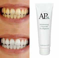 I am a distributor of AP 24 Whitening Toothpaste $22 FREE SHIPPING. Completely safe for children, pregnant women, false teeth, and braces. Help with sensitive teeth, stained teeth, and gum disease. Peroxide free. Has a great taste and really works. Message me to order yours.