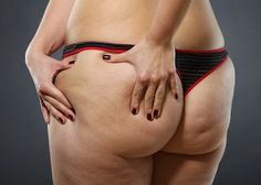 4 Rules You Must Follow to Get Rid of Cellulite How To Get Rid Of Cellulite